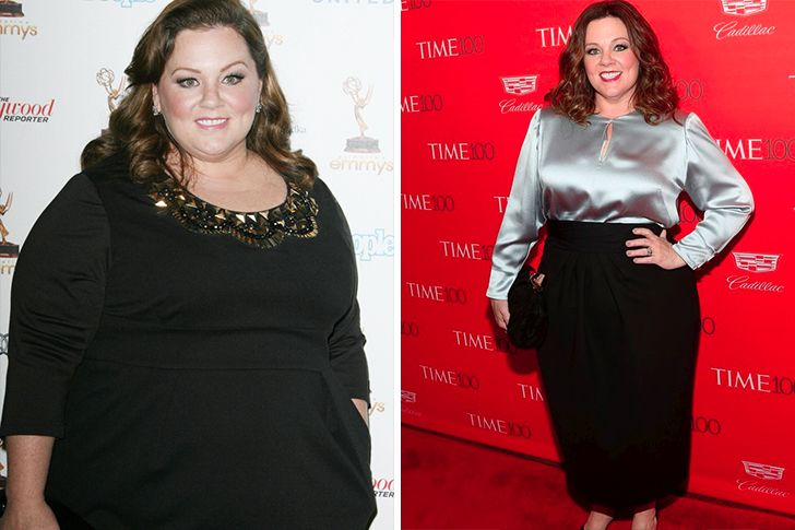 Stars Who Have Undergone A Gastric Sleeve Surgery Who Lost The Most Weight And Who Needed Medical Insuranc Sleeve Surgery Adele Weight Gastric Sleeve Surgery