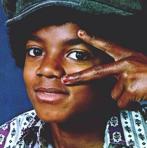 Michael Jackson vitiligo starting at fingertips