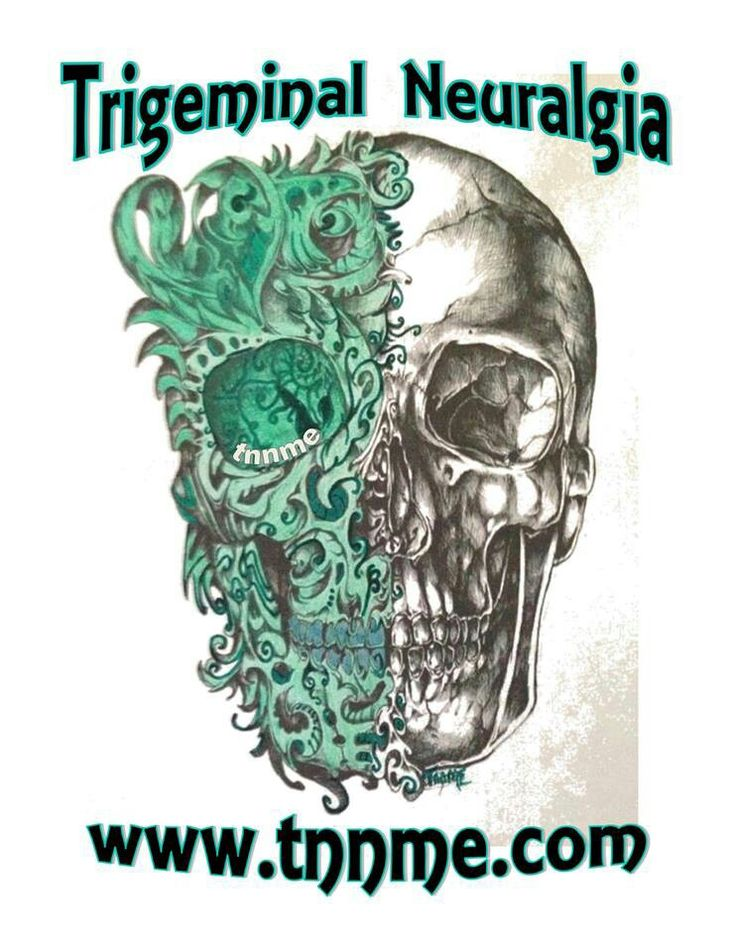 Trigeminal Neuralgia tattoo but with out the words