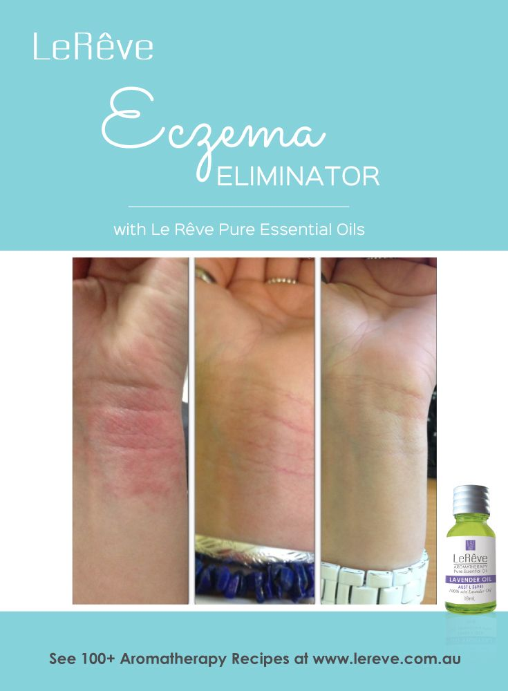 Treat skin conditions such as eczema and much more with natural aromatherapy remedies using pure essential oils by Le Reve. See complete article for success stories and suggested essential oil blend plus 100+ more aromatherapy recipes! http://www.aromatherapy.net.au/eczema-eliminator/