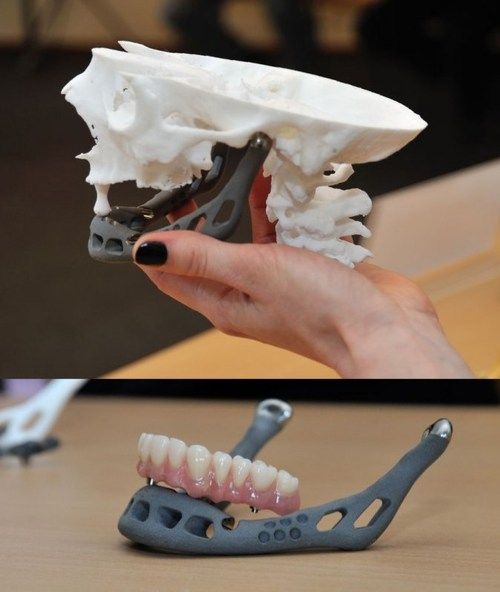 An 83-year old woman is the first in the world to receive a full #3Dprinted titanium lower jaw implant. Amazingly, the combined effort by researchers and engineers from Belgium and the Netherlands is said to have allowed the patient unrestricted mandibular movement within a day of surgery.