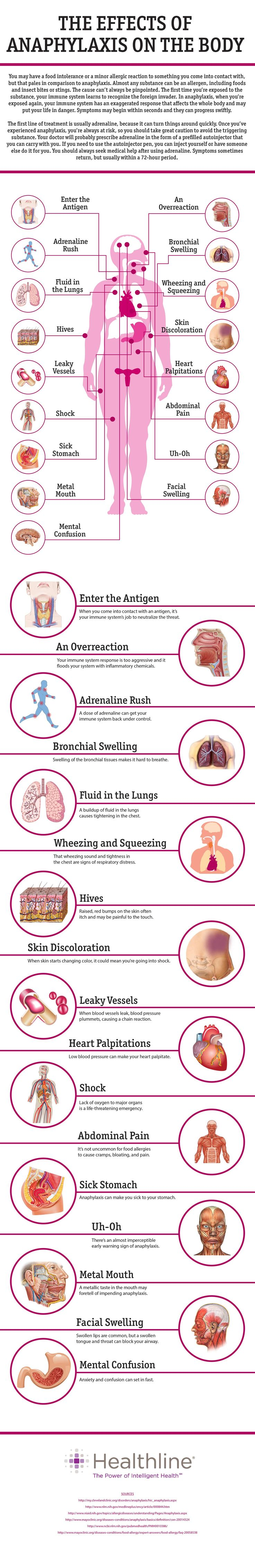 If you believe you are experiencing an anaphylactic reaction #infografía