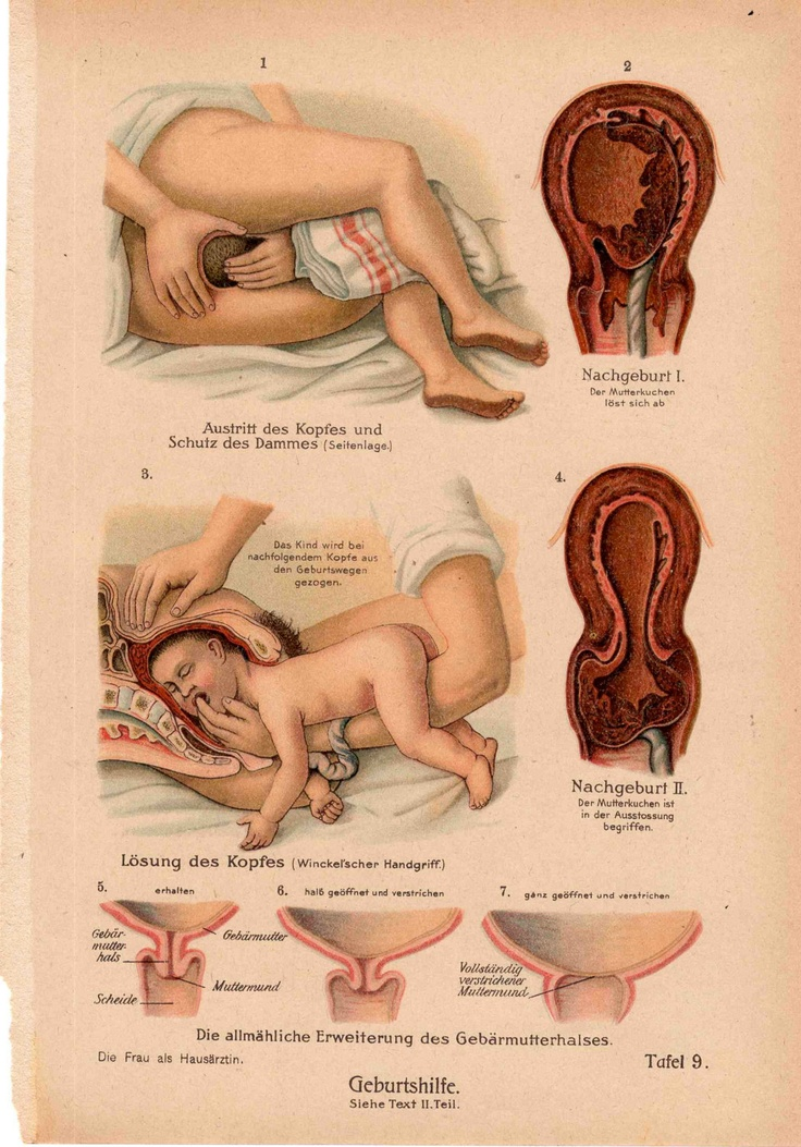 1921 birth human gestation original antique pregnant anatomy print B. $65.00, via Etsy.