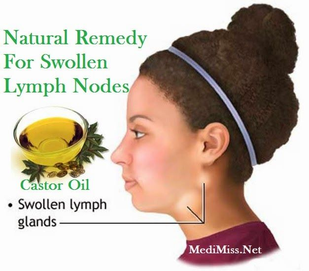 Lymph nodes on the neck how to treat and, most importantly, what to treat