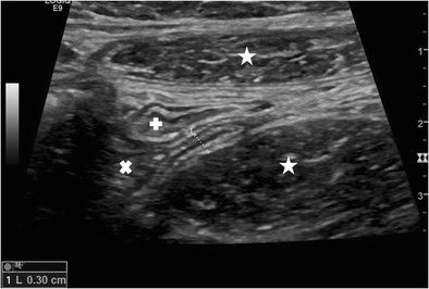 Figure 1: Longitudinal real-time US scan of a normal appendix. Diameter 0.3 cm. ** psoas muscle, * rectus muscle, x caecum, + terminal ileum