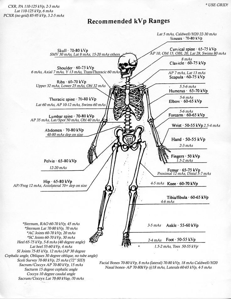 cool kVp/MAS ranges...pin this first to  check later if they are close to the current... by http://dezdemonhumoraddiction.space/radiology-humor/kvpmas-ranges-pin-this-first-to-check-later-if-they-are-close-to-the-current/