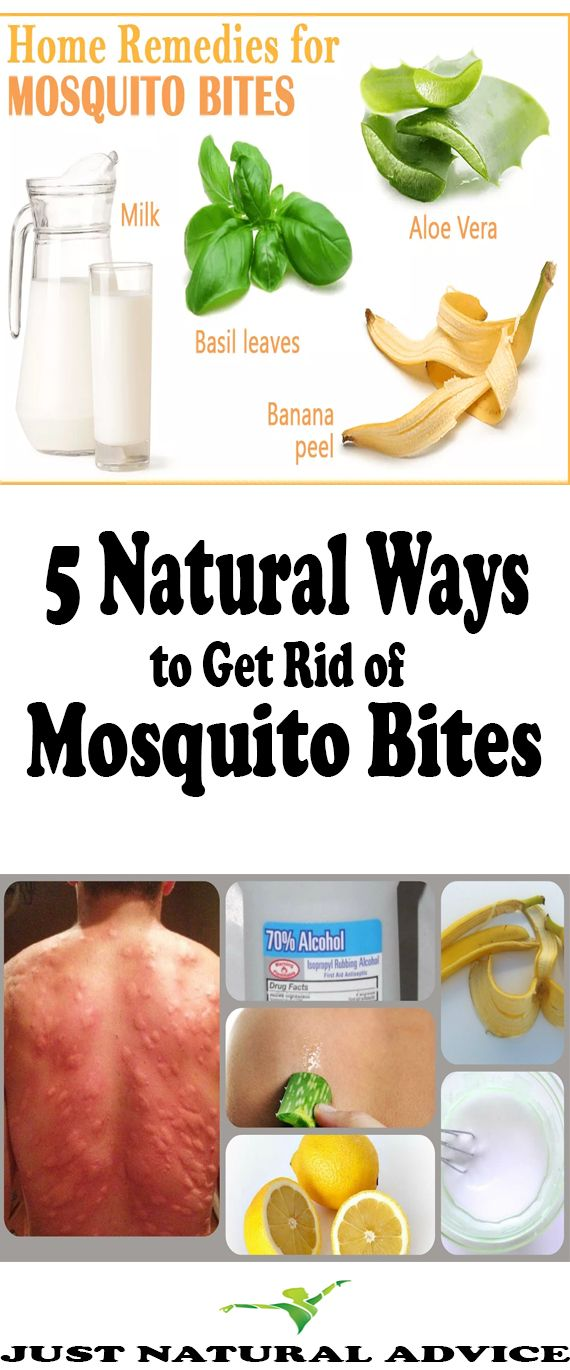 5 Natural Ways to Get Rid of Mosquito Bites
