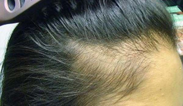 Alopecia Hair Styles: Traction Alopecia: Bunheads Take A Break Every Once In