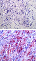 TLR4 IMG-5031A IHC staining in human colon tissue.