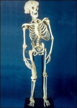 """Joseph Merrick, the """"Elephant Man"""", was one of the most shockingly disfigured people in history. Above: Joseph Merrick's skeleton at the Royal London Hospital.  Image Credit: Royal London Hospital Archives"""