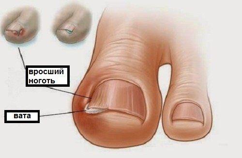 Домашнее лечение вросшего ногтя