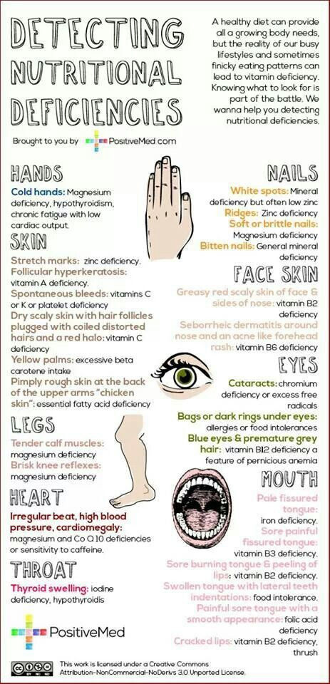 Detecting Nutritional Deficiencies / Health / Nutrition / Healthy Lifestyle