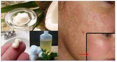 No pierdas el tiempo con láser, pastillas ni cremas. Lava tu cara con esto antes de dormir y cuando te levantes no tendrás manchas ni arrugas.