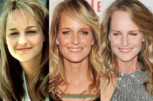 46 Best Celebrity Facelifts Images On Pinterest Melanie
