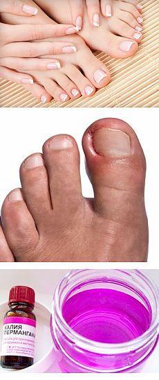 Вросший ноготь на большом пальце ноги - лечение в домашних условиях.