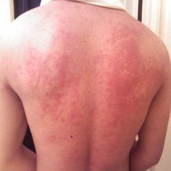 Herbal Remedies For Hives - Natural Remedies For The Treatment Of Hives | Search Home Remedy