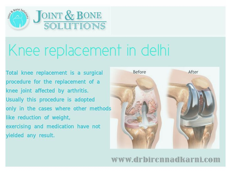 In knee osteoarthritis the knee cartilage slowly wears away. In this type of arthritis the protective cartilage over the bone at the knee joint wears away. Wearing of the cartilage results in the exposure of the bone.