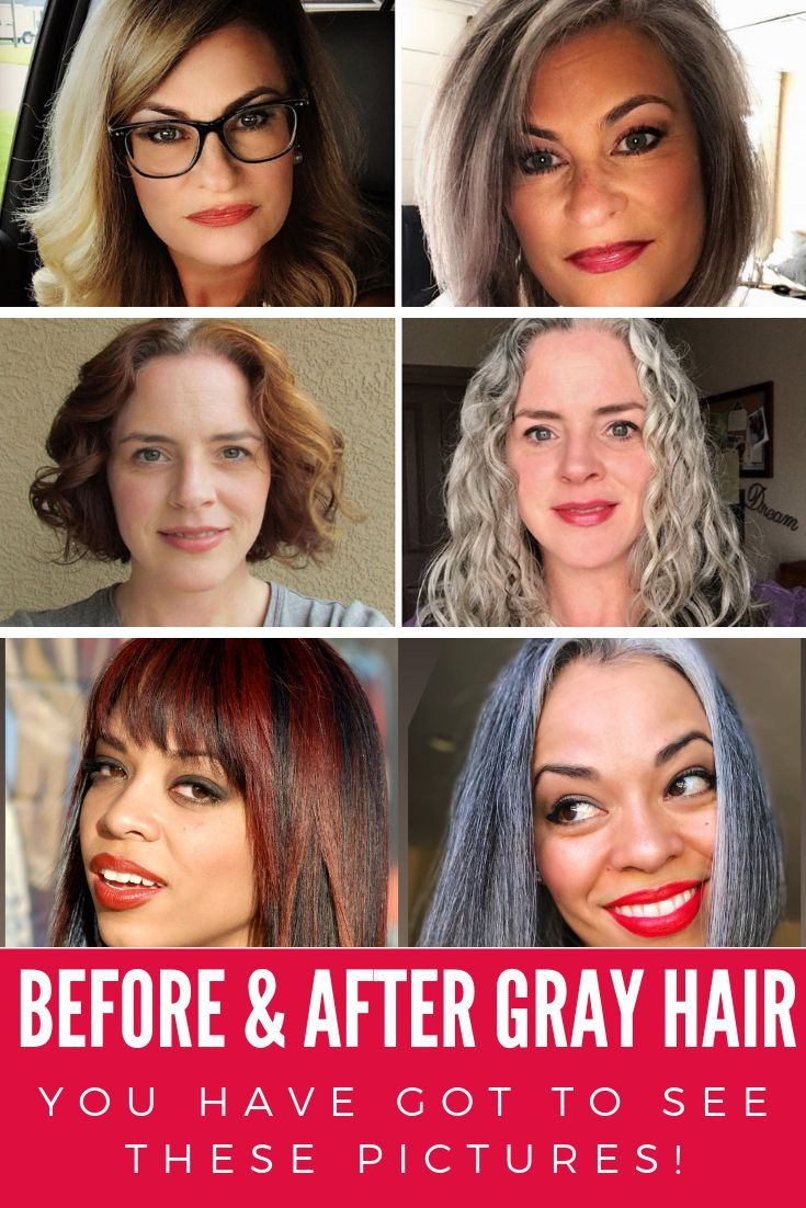 30 Gray Hair Before And After Pix That Will Blow Your Mind Grey Hair Before And After Hair Photo Gray Hair Growing Out