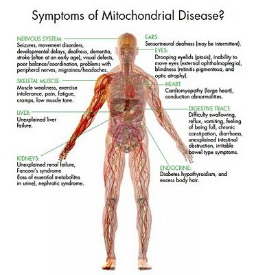 Stella Grace Marshall - Mitochondrial Disease