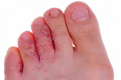 7. Treat Athlete's Foot