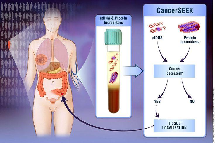 #Detectan 8 tipos de cáncer con 1 prueba - Diario El Mundo de Orizaba: Detectan 8 tipos de cáncer con 1 prueba Diario El Mundo de Orizaba…