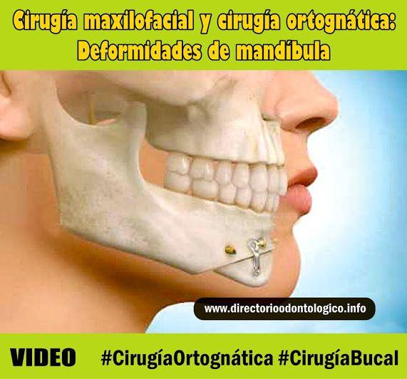 cirugía-ortognática