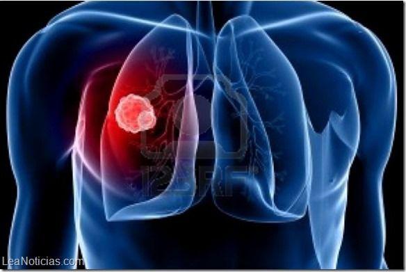 Médicos logran detectar cáncer pulmonar con análisis de sangre - http://www.leanoticias.com/2014/12/19/medicos-logran-detectar-cancer-pulmonar-con-analisis-de-sangre/