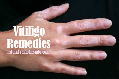 Vitiligo home remedies #vitiligo #remedies