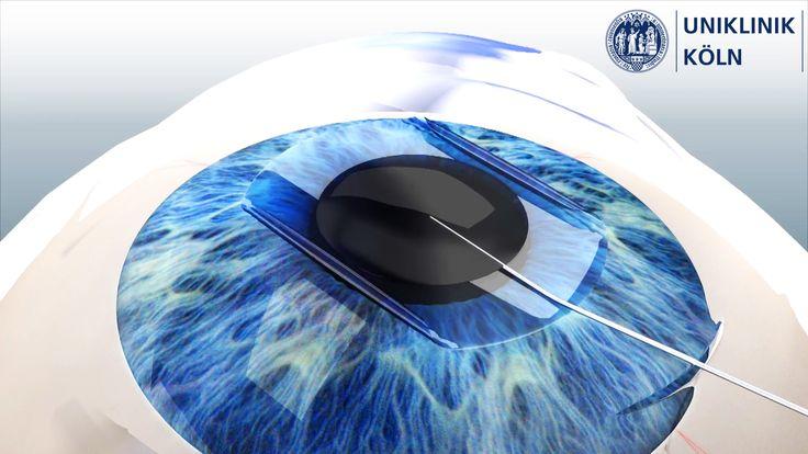 3D Animation einer Augen-OP für die Uniklinik Köln