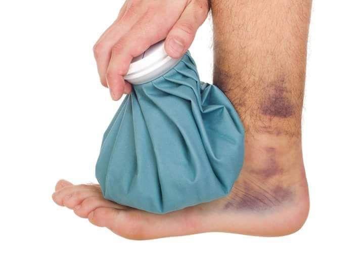 إسعافات أولية التواء الكاحل لا تحاول تحريك المفصل أو الضغط عليه و ثبته من خلال لف رباط ضاغط على القدم و Ankle Fracture Fracture Symptoms Laser Vein Removal