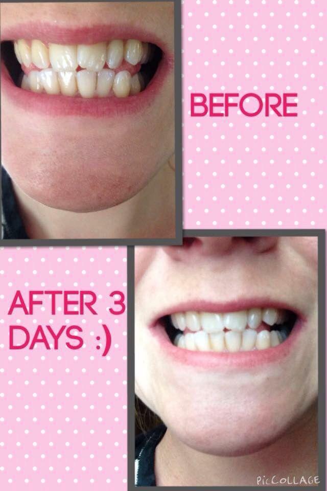 Ap 24 Whitening Toothpaste Nu Skin