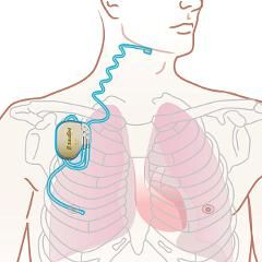 Apnée du sommeil : un traitement par stimulation électrique offert en France