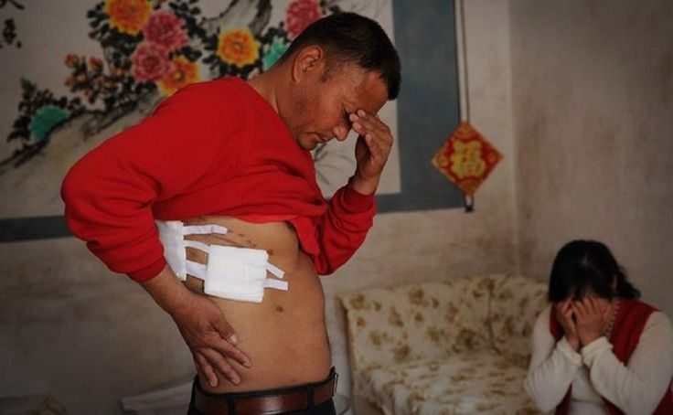 Defavouredkings Blog: Chinese man's 'missing kidney' found in his own bo...