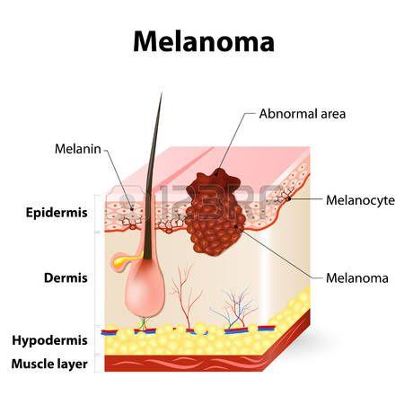 Melanoma o cáncer de piel. Este tipo raro de cáncer de piel se origina en los melanocitos. capas de la piel humana.