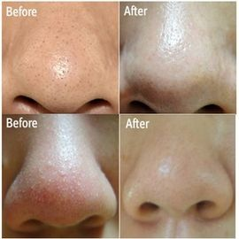 Top Tips on Removing Blackheads