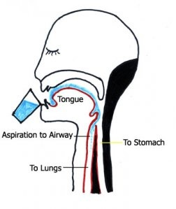 Dysphagia. Pinned by SOS Inc. Resources. Follow all our boards at http://Pinterest.com/sostherapy for therapy resources.