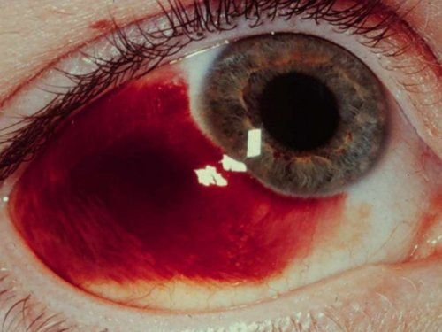 Subconjunctival hemorrhage can be from hypertension (high blood pressure), being on blood thinners, heavy coughing, sneezing or vomiting
