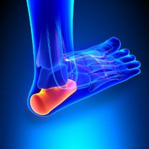 how to get rid of heel pain