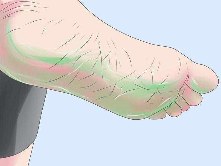 A bőrkeményedés nagyon kellemetlen, ez nem csak esztétikai probléma, de járás közben is zavaró lehet. A repedezett sarkak miatt sok nő nem meri felvenni a kedvenc cipőjét, pedig van egy egyszerű módszer, amivel újra puhává és széppé var...