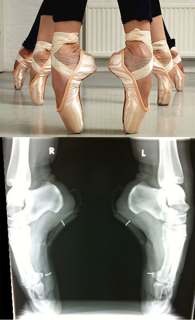 You Should Know Ballerinas Are More Hardcore Than You  Ballet is totally metal.