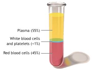 Platelet Rich Plasma Injections for Morton's neuroma