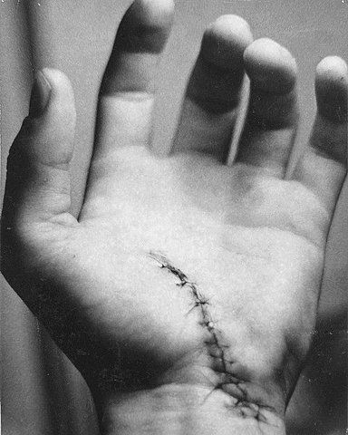 stitches - remember wounds take a while to heal, can get infected, stitches can tear, and will leave scars. All things to take into account. Also, some scars may ache, or carry traumatic memories for characters (psychological).