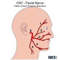 Tumors along Cranial Nerve 8, the Vestibulocochlear Nerve often damage the Facial Nerve, even if other things can cause damage to the Facial nerve as well. Understand the reasons and options.