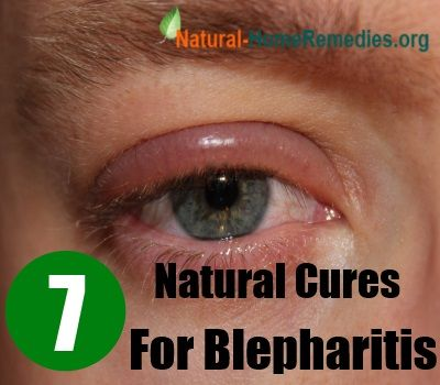 Chronic Dry Eye Natural Treatments