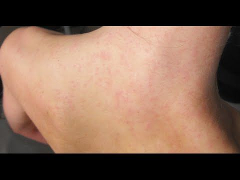 How To Get Rid Of Psoriasis (Natural Treatment)