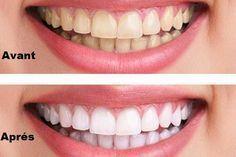 Blanchir vos dents naturellement en seulement 3 minutes
