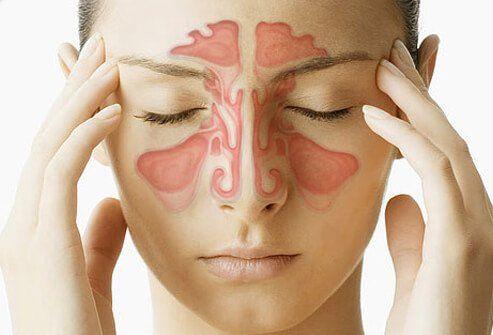 Sinus Infection (Sinusitis) Symptoms & Treatment