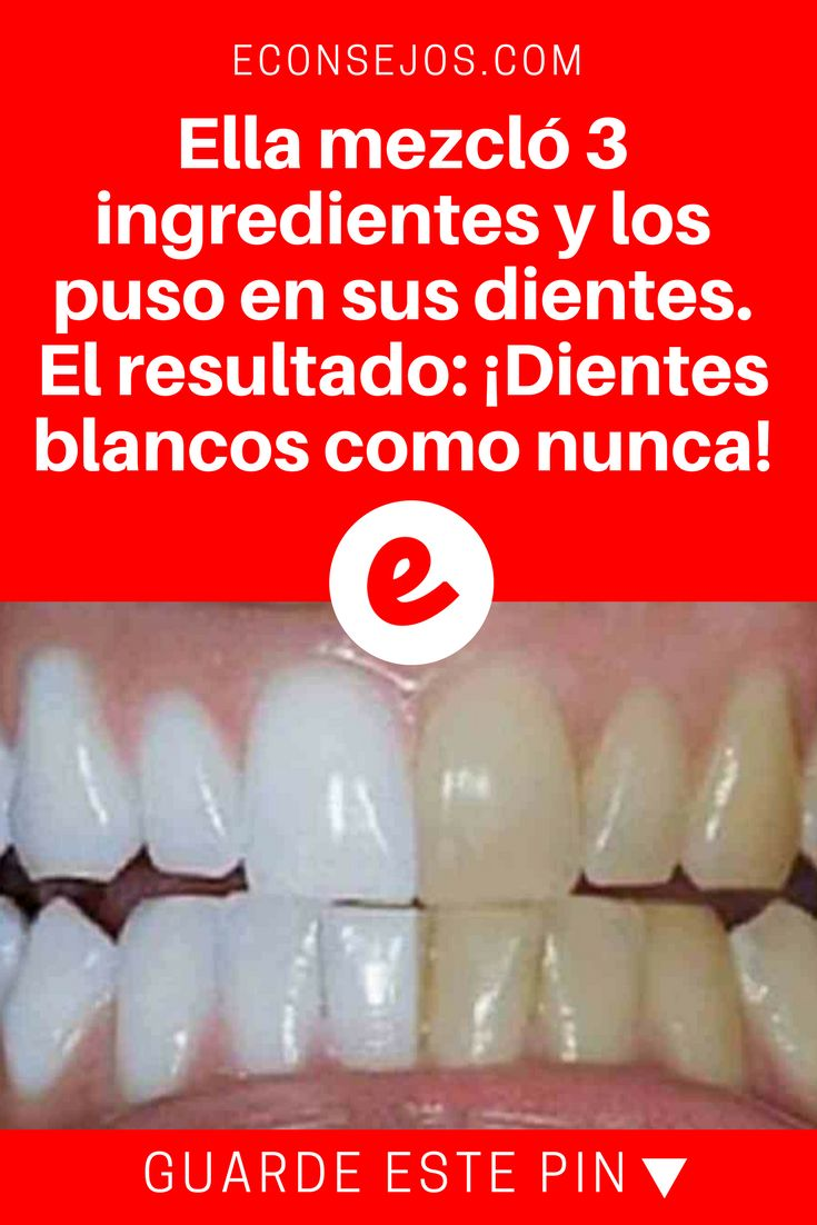 Blanqueamiento dental casero | Ella mezcló 3 ingredientes y los puso en sus dientes. El resultado: ¡Dientes blancos como nunca! | ¿Jamás imaginó hacer un blanqueamiento dental barato y sin el uso de productos químicos perjudiciales para su salud? Eso es posible y sabrá cómo ahora.