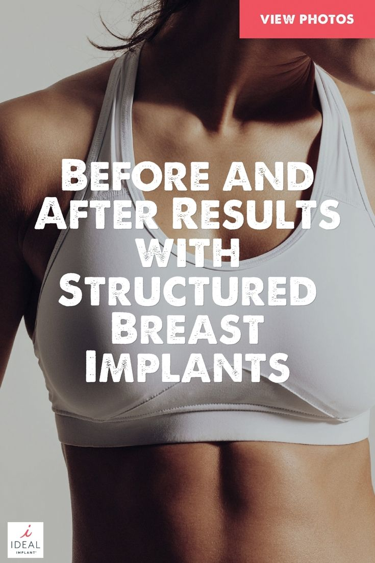 Pin On Breast Augmentation Options For Breast Implants