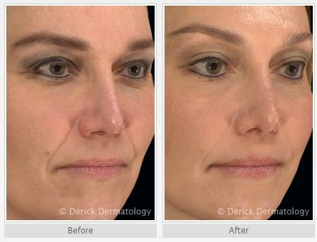Radiesse is a dermal filler used to lift the lower face and fill in deep naso-labial wrinkles around the mouth.